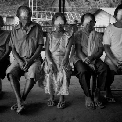 Pagina dupla! / Pacientes indígenas atendidos e operados no centro oftalmológico montado dentro da comunidade de Vila Nova. O local a seis horas de voadeira da cidade de São Gabriel não possui posto de saúde nem nenhuma assistência medica. Imagens tratadas pela Marina