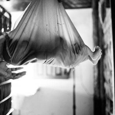 Expedicionários da Saúde, coordenado por Ricardo Affonso Ferreira, ortopedista e presidente-fundador. Ele lidera o grupo, explica a dinâmica dessa expedição, a 16a (sem contar com a expedição de ajuda ao Haiti). Poucos hoje são novatos na equipe. A maioria já é apaixonada pelo trabalho e se envolve em quase todas as expedições. O trabalho, que é voluntário, inspira esses profissionais a trabalharem pelos próximos 10 dias e fazer a diferença nessa comunidade indígena de Sateré-Mawé. Esta é a segunda vez que os Expedicionários organizam uma missão aqui. A primeira teve um quórum menor, mesmo porque são diversos fatores que precisam ser feitos para que o trabalho aconteça. Antes da expedição em si, parte da equipe dos Expedicionários vêm para cá, conversa com a liderança local, explica o trabalho, faz parcerias com a Funasa e com a equipe de saúde para que a logística de buscar e levar essas pessoas aconteça; a alimentação, a hospedagem, tudo isso tem que ser levado em consideração para que uma expedição tenha pacientes para ser operados. Em Umirituba, vimos os profissionais da Funasa trabalhando em parceria com os Expedicionários. A equipe do pólo-base informou que viriam pessoas de Parintins, que coordena os barcos de outras regiões fora da cidade, Barreirinha, Maues e Nhamundá (da reserva indígena de etnia Hixariana) para ser atendidos. Os pólos-base da região são: Araticum, Umirituba, Vila Nova e Curuatuba. Os pacientes são rapidamente examinados; se precisam de cirurgia, vão direto para o pré-cirúrgico. No dia seguinte, muito provavelmente, já terão alta para voltar para casa. Os procedimentos são rápidos São cerca de 30 cirurgias por dia. O tempo e a demanda precisam ser calculados para que todos sejam atendidos. Os pacientes não cessam em chegar. Dessa vez, o número de pessoas que compareceram aqui foi imensamente maior. Até indígenas de outra etnia vieram: os Hixariana (ou Hexariana, Escariana – ver